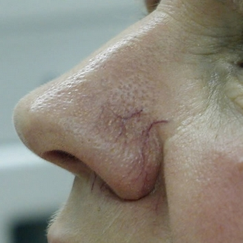 red veins on nose causes