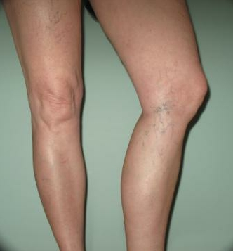 Visible Blue Veins In Legs - Doctor insights on HealthTap