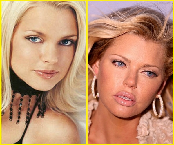 10 Celebrity Plastic Surgery Disasters Before and After