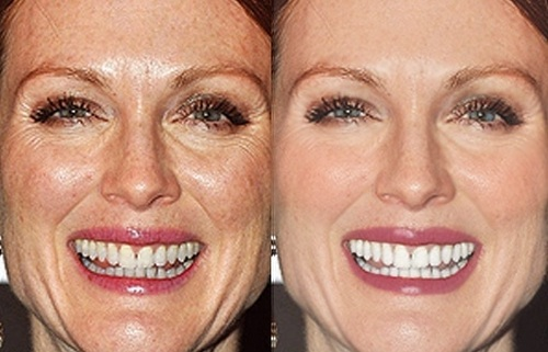 Julianne Moore Before Photoshop (left) and After Photoshop (right)