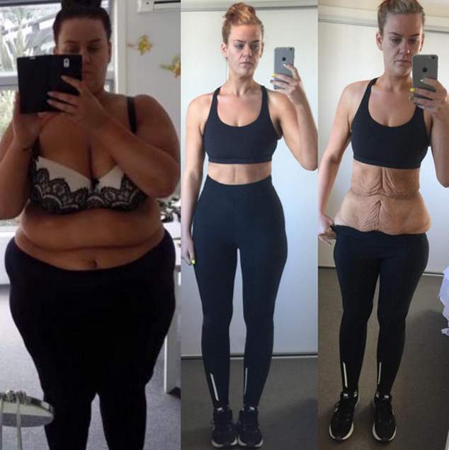 Inspiring Before and After Weight Loss Stories
