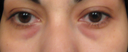 Get Rid of Dark Circles and Puffiness Around Your Eyes